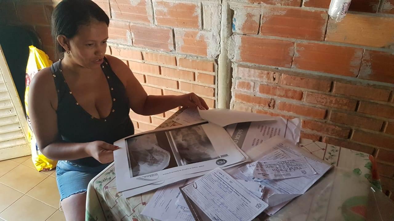 Dona de casa Valquíria de Almeida reclama da demora para que a cirurgia seja realizada | Foto: Folha Z