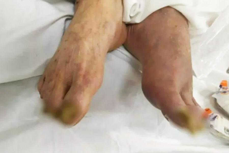 Idoso vítima de maus tratos em Goiânia | Foto: Reprodução